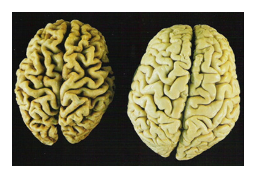 Your choice...Alzheimer's BRAIN or Healthy BRAIN