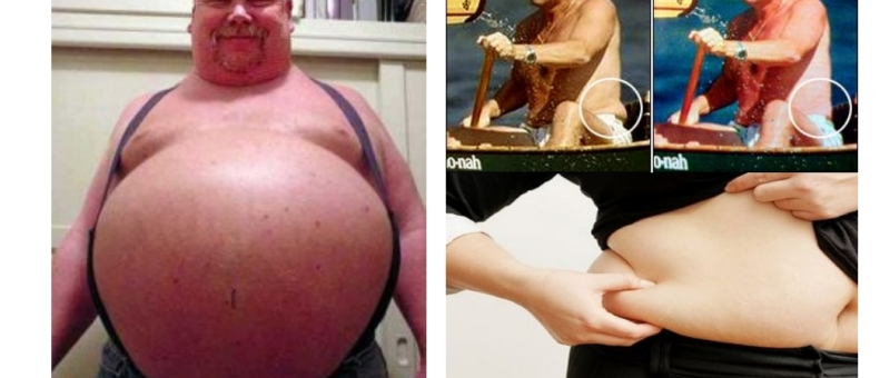 visceral fat vs subcutaneous fat how to tell