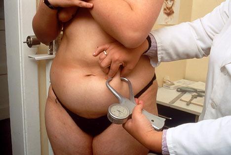fat-belly-woman