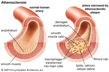 atherosclerosis