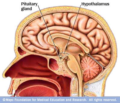 hypothalamus prader willi