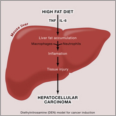 obesity liver cancer