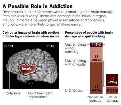 insula-addiction-obesity